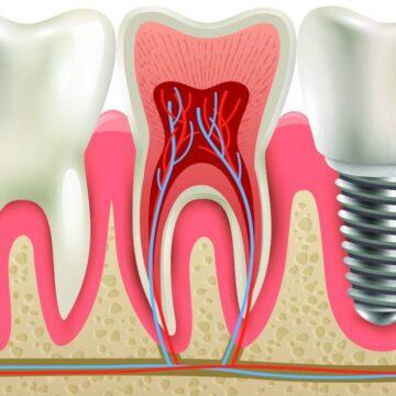 Gli Interventi di Impiantologia Dentale